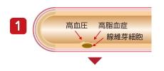 アテローム性動脈硬化1