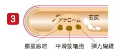 アテローム性動脈硬化3